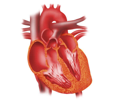 ceufast - congestive heart failure: the essence of heart failure, Muscles