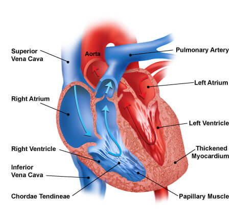 heart failure cut-away