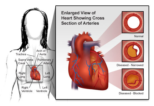 enlarged view of heart