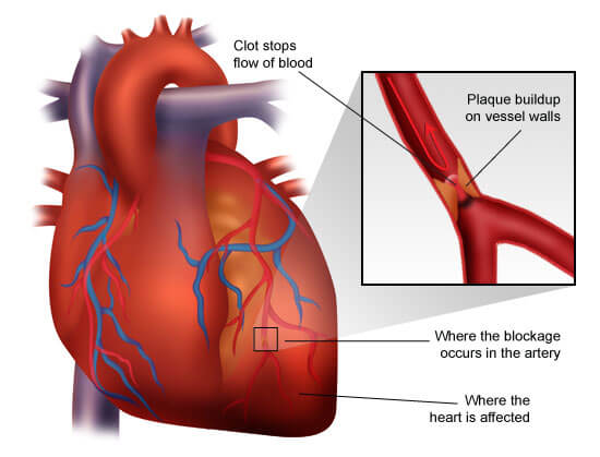 Congestive heart failure the essence of heart failure course ischemia necrosis ccuart Images