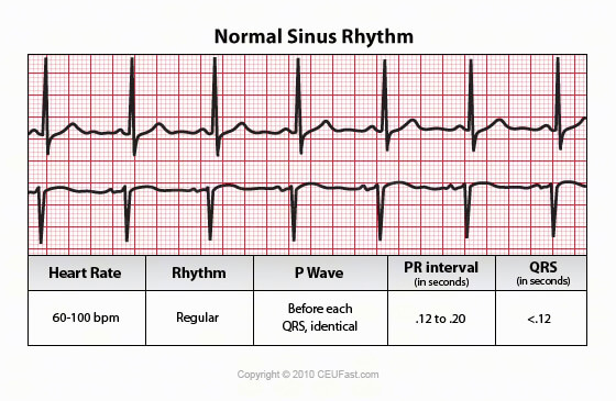 Determining heart rate by rhthym strip