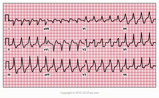Pfo likewise What Are The Indications For Using An Intra Aortic Balloon Pump Post Mi likewise Nursing Diagnosis For Atrial in addition Merlin Home Transmitter also Sure Scan Pacing System. on pacemaker patient education