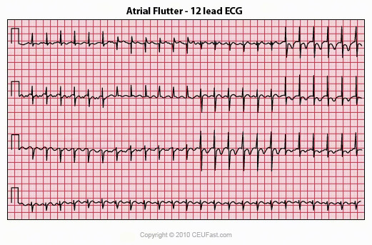 Ekg Ecg Interpretation Course Ceufast Nursing Continuing Education