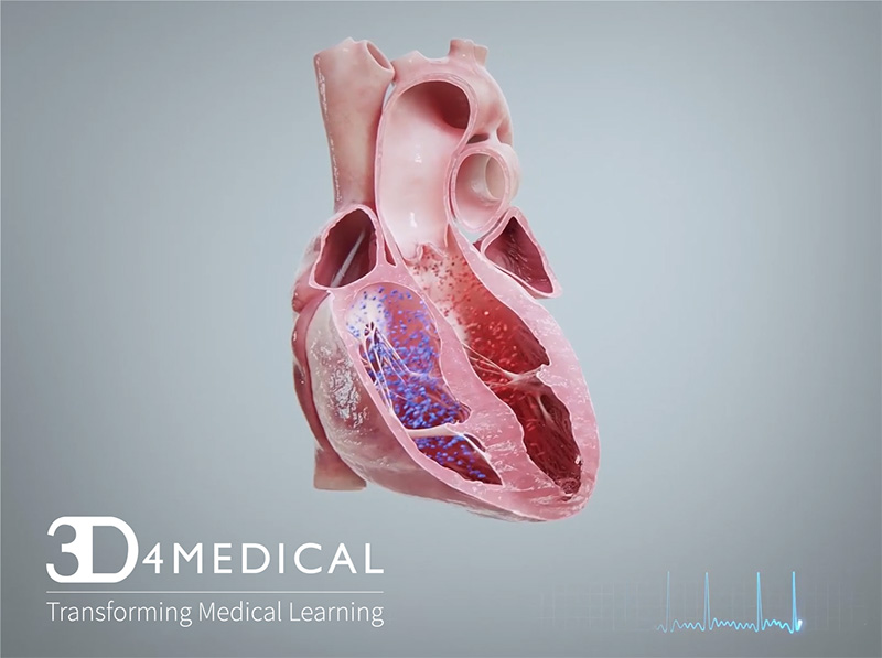 Ceufast Enhances Courses With 3d4medical Animations