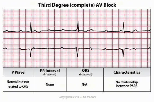 third degree complete av block