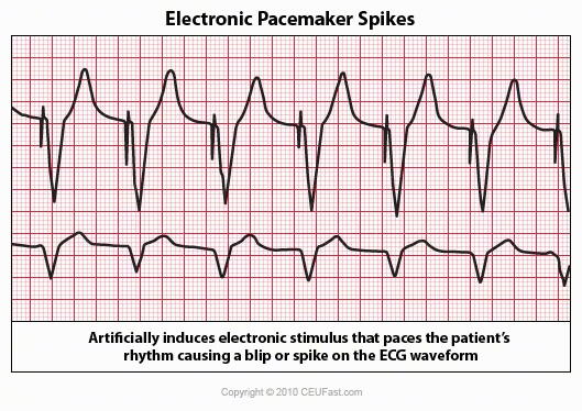 electronic pacemaker spikes