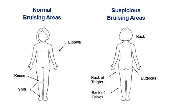 Bruising Areas