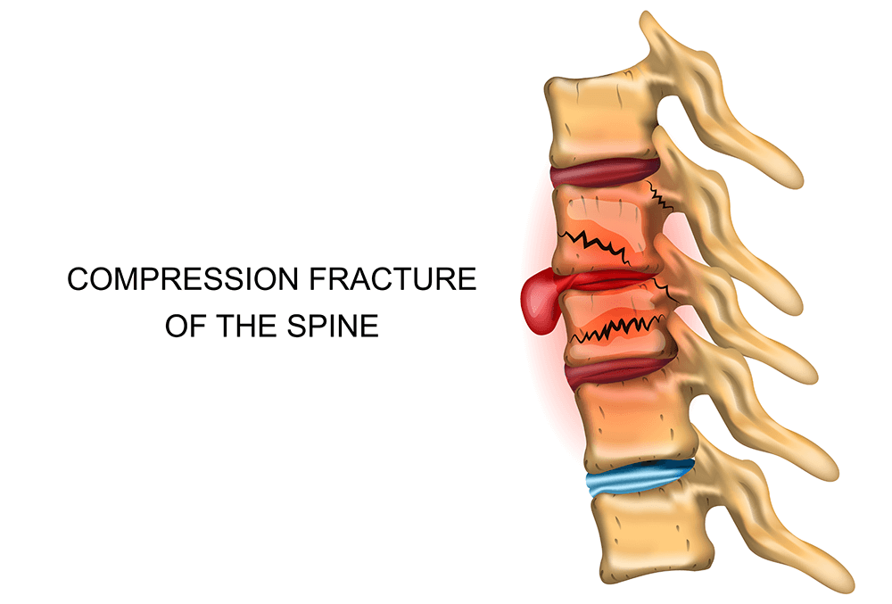 Figure 8: Thoracic Compression Fracture