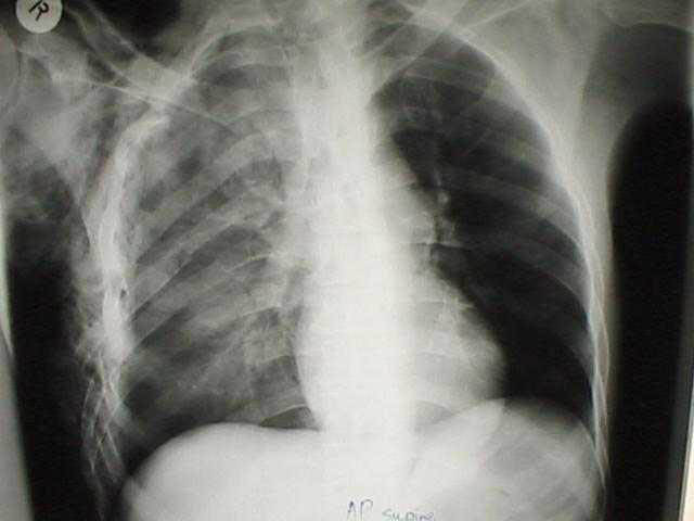 Film 1 AP Chest X-ray