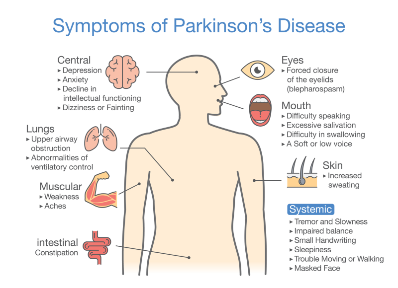 Parkinson U2019s Disease  Signs  Risks And Treatme