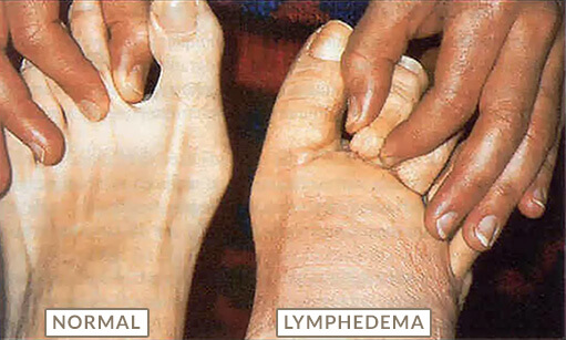 Wound Series Part 4: Lymphedema and Chronic Wounds Course | CEUfast